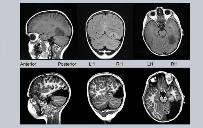 Hatéves gyerek agyának MRI-felvétele a jobb oldali nyakszirtlebeny teljes és a halántéklebeny részleges eltávolítása előtt és után. Forrás: Liu et al. in Cell Reports