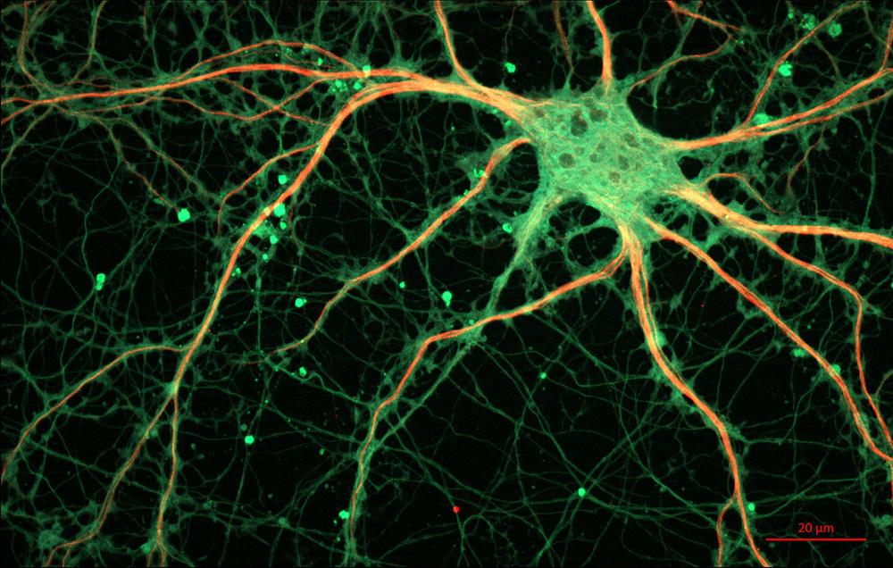 Idegsejt egy patkány hippokampuszából. Forrás: Flickr/ZEISS Microscopy; Stefanie Kaech & Gary Banker, OHSU, Oregon, USA