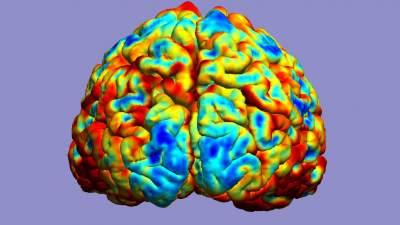 Agyi funkcionális MRI-felvétel - forrás: Flickr/Reigh LeBlanc