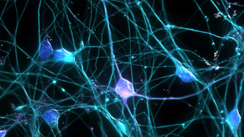 Neuronhálózat illusztráció, forrás: Flickr/UCI Research - OSA Student Chapter at UCI Art in Science Contest/Ardy Rahman