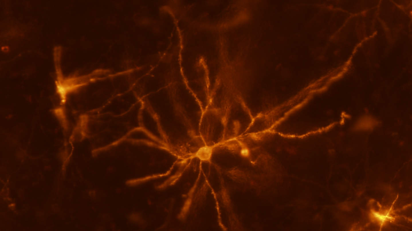 Egérneuron, striatum - forrás: Flickr/NIH Image Gallery/Veronica Alvarez, National Institutes of Health